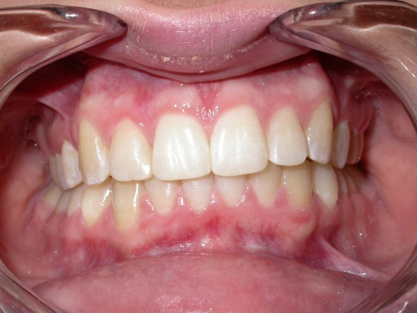 Image result for Outcomes Of Right Orthodontic Products